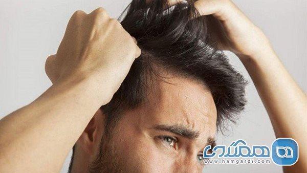 تاثیر ورزش بر ریزش مو
